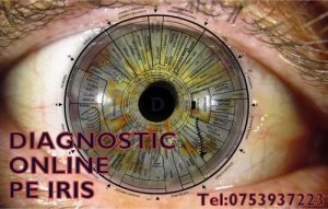 Diagnostic online pe iris